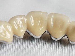 Какой материал лучше для протезирования