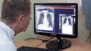 Новая лекарственная форма антибиотика циклосерин позволит снизить риск заболеваемости туберкулезом